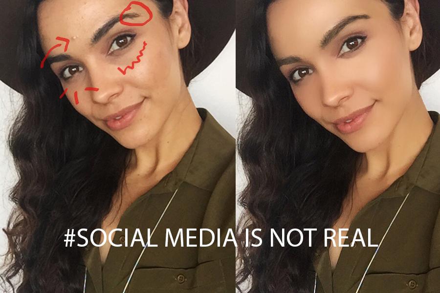 Fashion Fakes- Hiding Acne