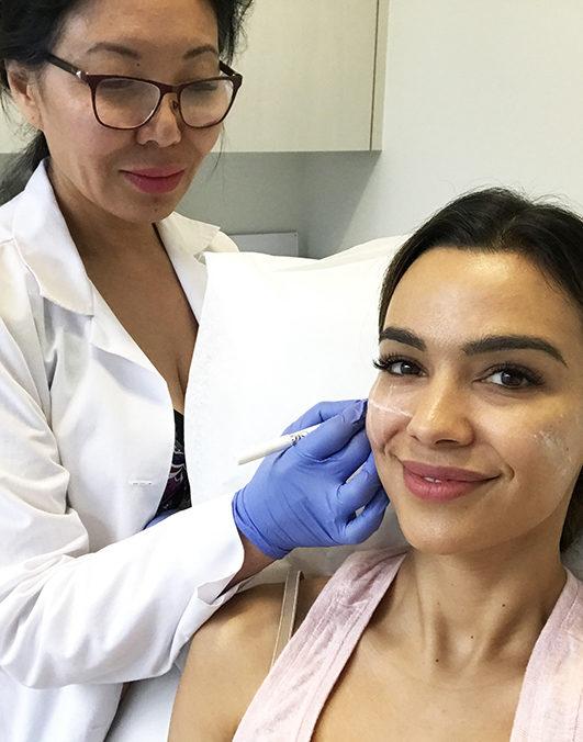 Botox & Fillers- My First Experience with Renew Aesthetic Clinic